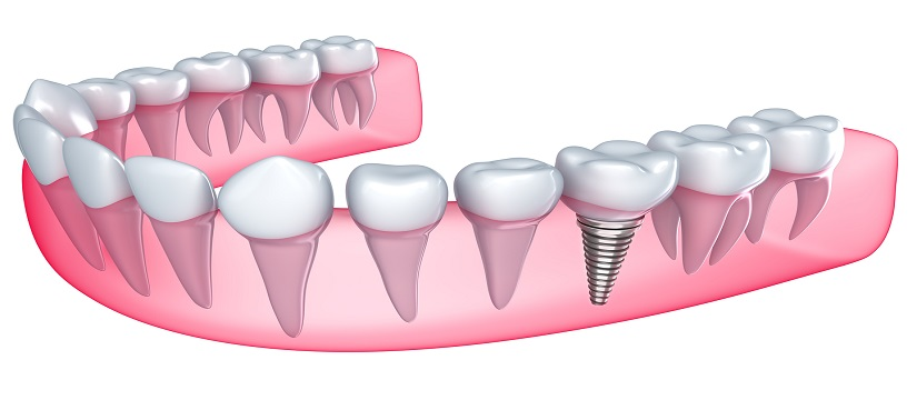 Dental Implant in Outram Line
