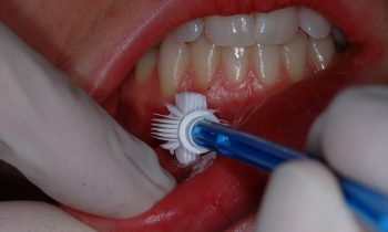 Best Dental Clinic in Kingsway Camp