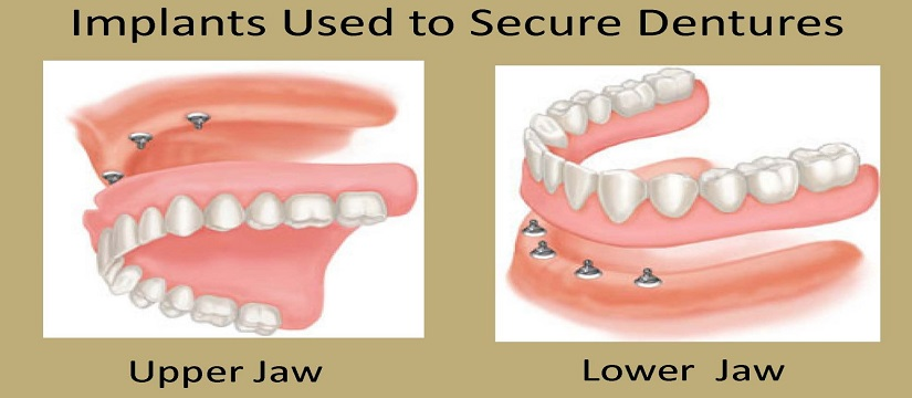 Dental Implant in Mukherjee Nagar