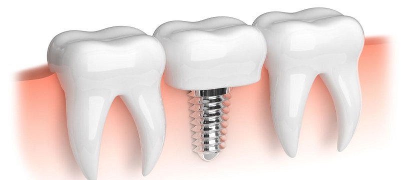 Dental Implant in Kingsway Camp