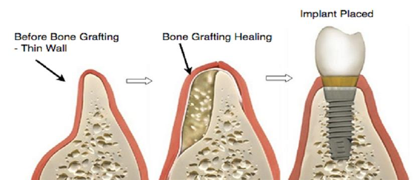 Bone-Grafting-Procedure