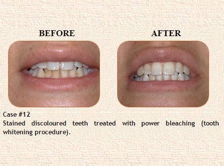 Root Canal treatment in Sant Nagar