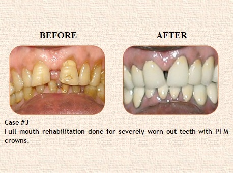 Root Canal treatment in Model Town