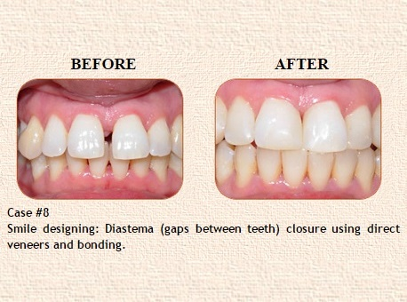 Best Dental Clinic in Civil Lines