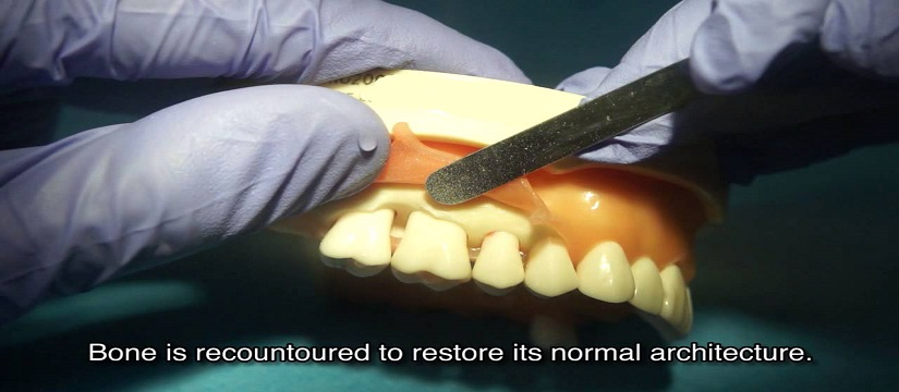 Pocket Reduction Surgery Delhi