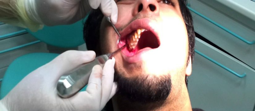 Best Dentist in Kingsway Camp