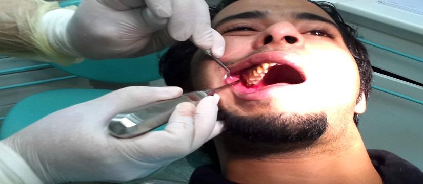 Third molar surgery-osp1