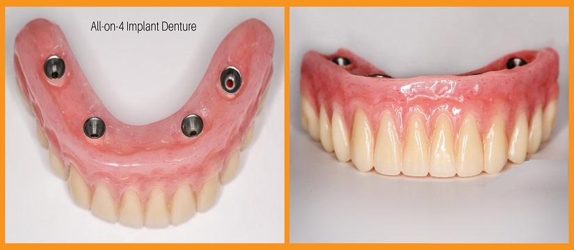 Teeth Whitening in Outram Line