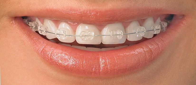 Endodontist in Malka Ganj