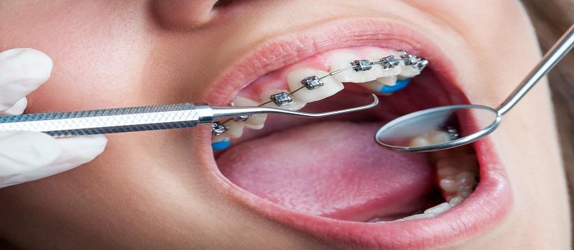 Best Dentist in Shakti Nagar