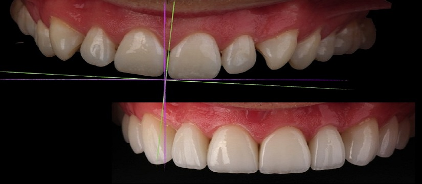 Dental Implant in Civil Lines