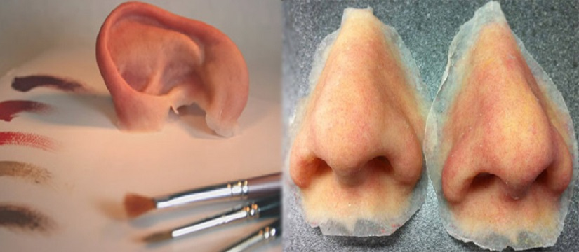 Maxilla Facial Prosthesis in Sant Nagar