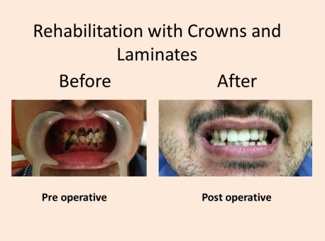 Rehabilitation with Crowns and Laminates